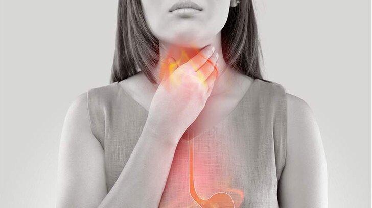 heartburn-1