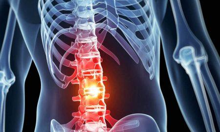 spinal-cord-injury-4