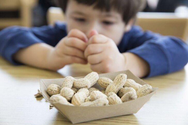 peanut-allergy-1